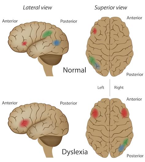 brain deregulation with dyslexia