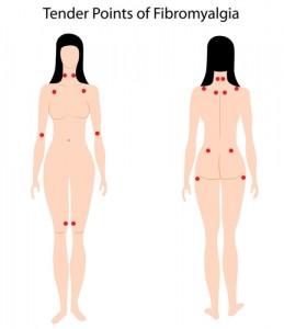 fibromyalgia symptoms - fibromyalgia diagnosis is through pain in tender points