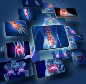 Neurofeedback for Fibromyalgia