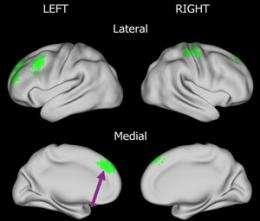 Tourrette's Brain Differences